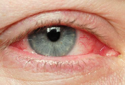 آلرژی های چشمی Eye Allergies
